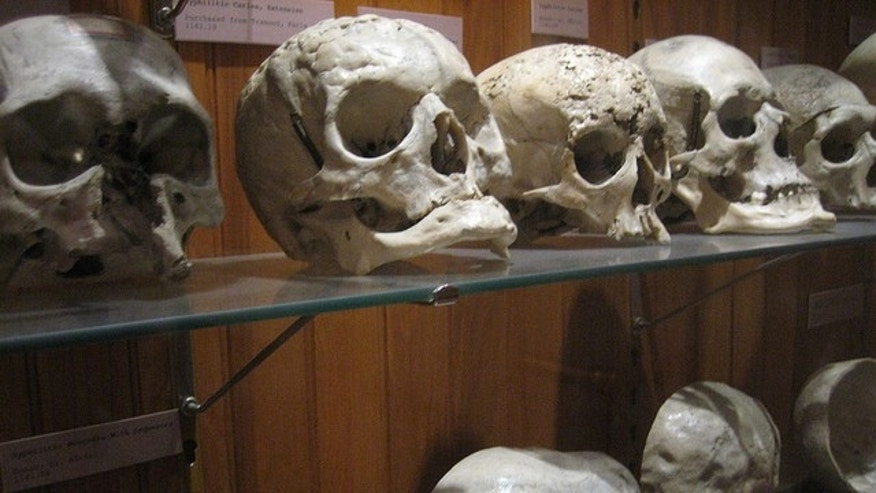 Skulls with tell-tale signs of syphilis (pictured above) may prove that the sexually transmitted disease existed in Europe centuries before Columbus discovered the New World.