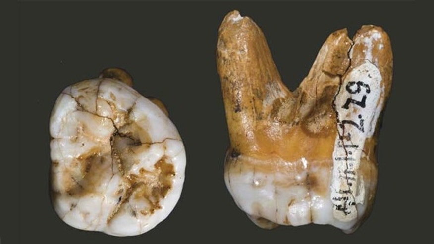 A molar tooth belonging to a Denisovan, thought to be a new branch of ancient humans.