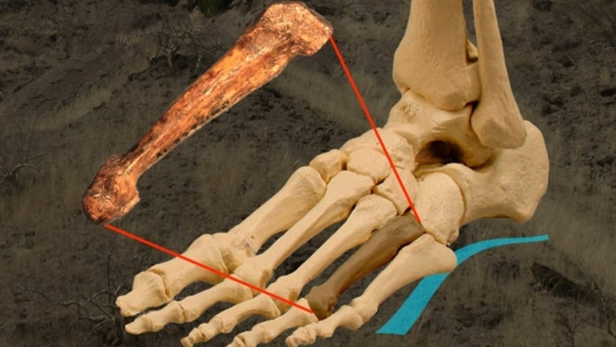 Bones of a human foot shoing the uniquely arched configuration of the foot boones, and where the fourth metatarsal is located. The 3.2 million year old bones from Ethiopia reveal the foot arches in Australopithecus.