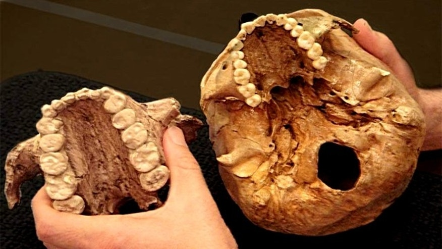 The extinct early human relative dubbed Nutcracker Man, Paranthropus boisei, had much larger teeth (left) than those of modern humans (right), as shown in these casts of two palates.