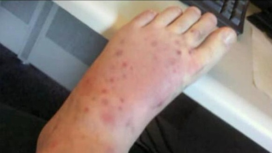 Jeff Seale suffered 19 black widow spider bites on his left foot; his sister is convinced that the man ultimately died from the poisonous bites.
