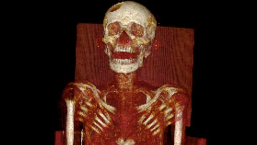 Researchers examined a 2,900-year-old mummy using X-rays, CT and magnetic resonance imaging (MRI) scans. They found that he suffered from Hand-Schuller-Christians disease, a very rare condition that left him with lesions in his skull and spine.