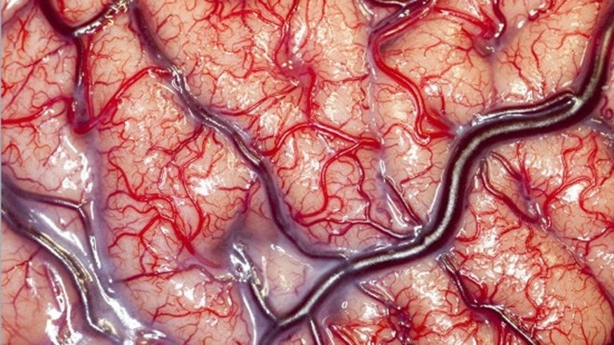 This image of a living human brain taken during surgery won the 2012 Wellcome Trust Award for biomedical photography.