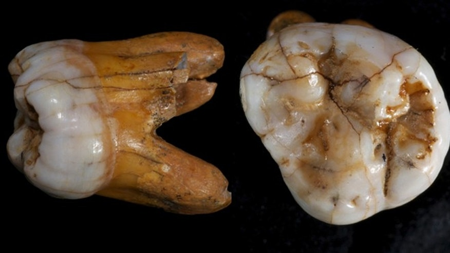The molar from a Denisovan, an archaic humans closely related to Neandertals and modern humans. Fossil evidence of the Denisovans is scanty; the existence of this group only came to light in 2010 when DNA from a piece of a finger bone and two molars were excavated in Siberia.