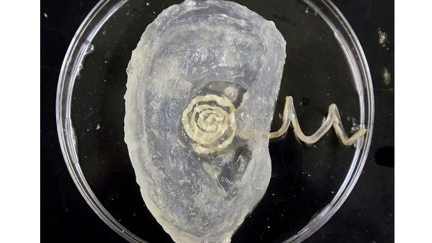 "A bionic ear rests in a petri dish, in Princeton, N.J. Scientists at Princeton University have created an ear with an off-the-shelf 3-D printer that can ""hear"" radio frequencies far beyond the range of normal human capability."