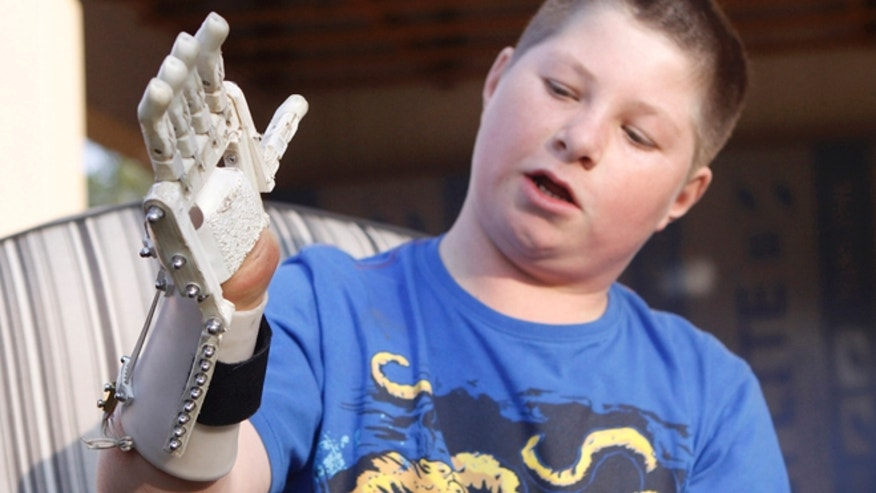 Aug. 23, 2013: Dylan Laas shows how his Robohand works in Johannesburg. Laas who was born with Amniotic Band Syndrome, got his hand from carpenter, Richard van As who lost four fingers to a circular saw two years ago and started workin on building the Robohand after seeing a video posted online.