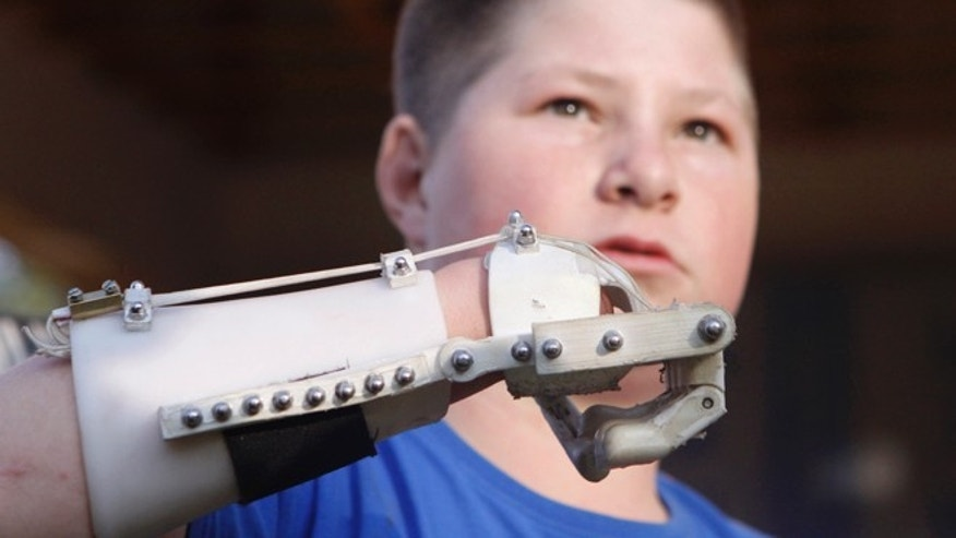 Aug. 23, 2013: Dylan Laas shows how his Robohand works during an interview with the Associated Press in Johannesburg.