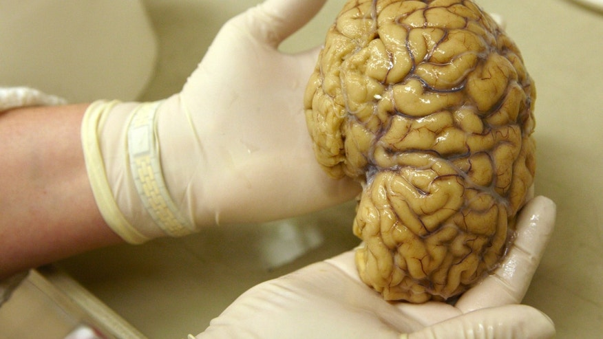 File photo - A laboratory assistant holds one hemisphere of a healthy brain in the Morphological unit of psychopathology in the Neuropsychiatry division of the Belle Idee University Hospital in Chene-Bourg near Geneva in a March 14, 2011 file photo. (REUTERS/Denis Balibouse/files)