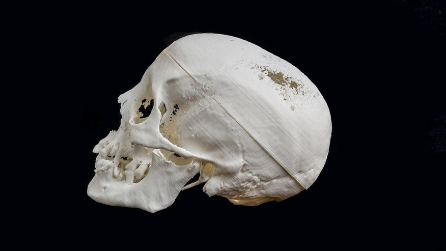 Researchers created a 3D-printed replica of the skull from an Egyptian mummy.