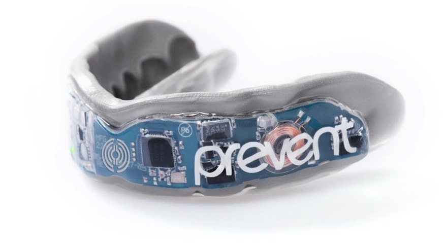 Custom fabricated mouthguard (Prevent Biometrics).