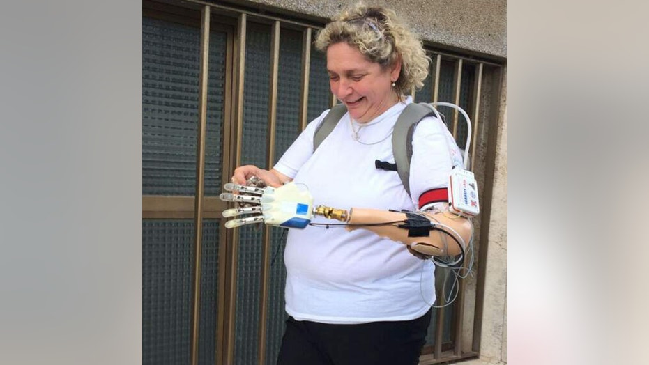 Almerina Mascarello, seen above, was able to use a bionic hand being developed by researchers in Italy.