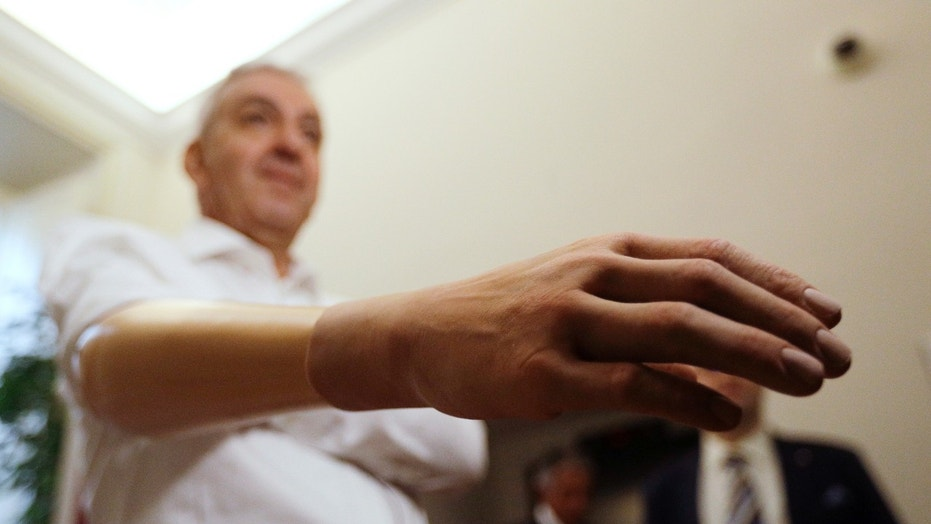 Marco Zambelli shows his prosthetic hand during an interview with the Associated Press in Rome Thursday, May 10, 2018. An Italian government-funded research institute and prosthetic maker unveiled a new robotic hand that they say amputees to grip objects with more precision, and with a mechanical design that will significantly bring down the price of a myoeletric prosthetic hand. (AP Photo/Gregorio Borgia)