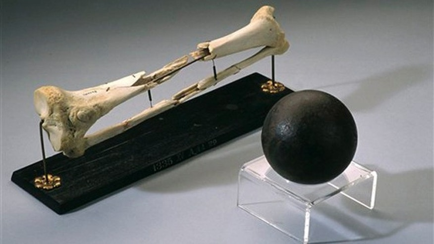 The shattered right leg bones of U.S. Army Maj. Gen. Daniel Sickles on display at the National Museum of Health and Medicine in Silver Spring, Md., along with a cannonball similar to the one that hit him during the Civil War Battle of Gettysburg. (AP Photo/National Museum of Health and Medicine)