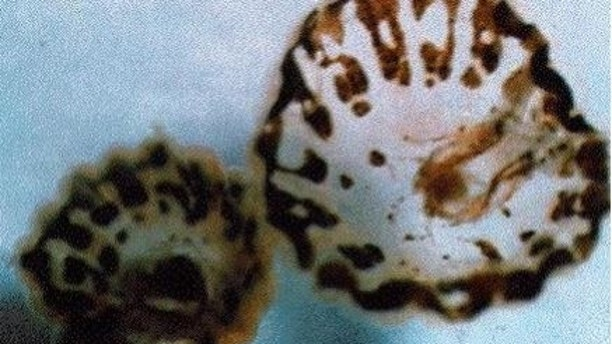 Department Of Health Warns Of Sea Lice Outbreak On Florida Beaches