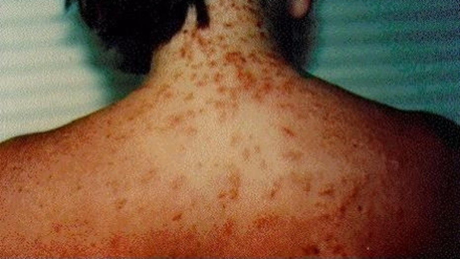 Sea lice can cause a rash on a person's skin.