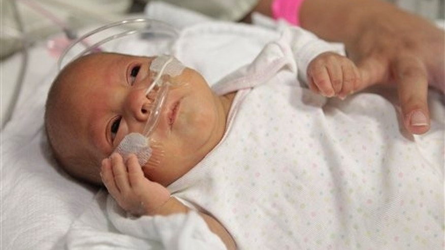 Dec. 14, 2011: 14-week-old Melinda Star Guido holds her mother's little finger while lying in an incubator at the Los Angeles County-USC Medical Center in Los Angeles.