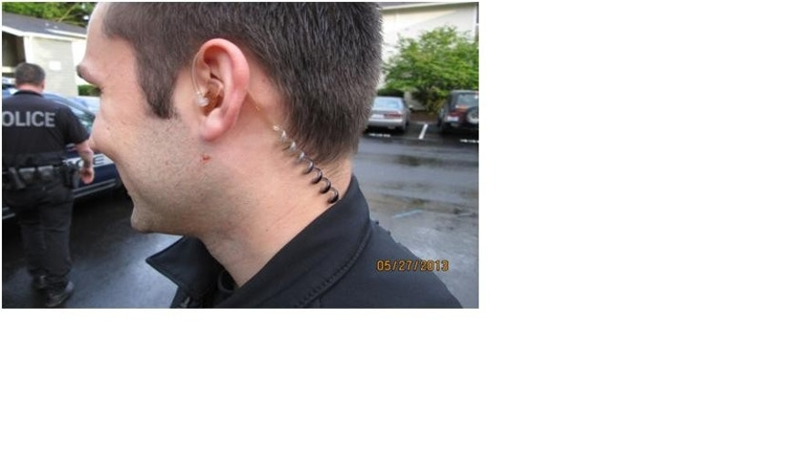 An officer shows scratches on his neck, allegedly inflicted by Megan Graham.