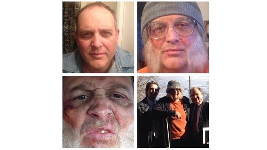 This photo combo of images taken Sunday, Nov. 24, 2013, and provided by Tara Sterling, shows David Musselman, a bishop for The Church of Jesus Christ of Latter-day Saints in Taylorsville, Utah, who had makeup artist Tara Starling transform him to appear battered and homeless.