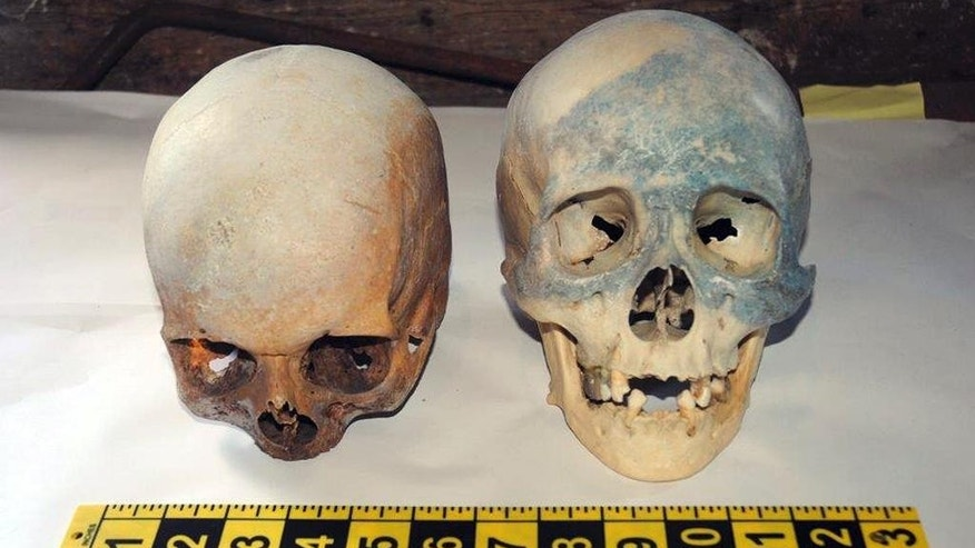 In this photo released by the Stamford, Conn., Police Department Friday, Oct. 31, 2014, two human skull are displayed, which were found at the Stamford Refuge Transfer Station. Police said the skulls were found Thursday afternoon along with books on Satan and witchcraft. The skulls were sent to the state medical examiner's office for further examination. (AP Photo/Stamford Police Department)