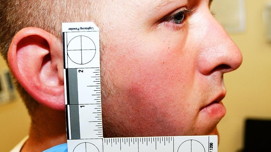 This undated photo released by the St. Louis County Prosecuting Attorney's office on Monday, Nov. 24, 2014, shows Ferguson police officer Darren Wilson during his medical examination after he fatally shot Michael Brown,in Ferguson, Mo.According to a medical record releasedas part of the evidence presented to the grand jury that declined to indict Wilson in the fatal shooting, doctors diagnosed Wilson with a facial contusion. (AP Photo/St. Louis County Prosecuting Attorney's Office)