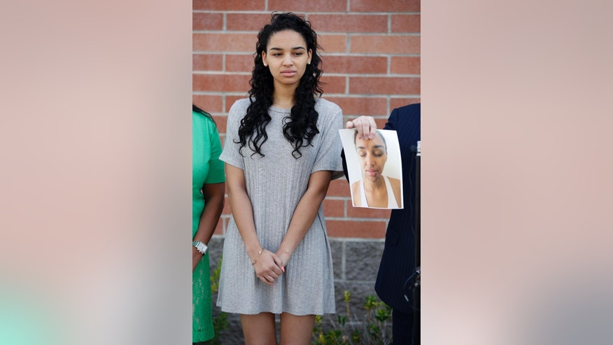 Ariana Mason attends a news conference as her attorney E. Brent Bryson holds up a picture of her Thursday, April 23, 2015, in Las Vegas. Mason is suing Las Vegas police and an officer she says smashed her face into a glass topped table during her arrest during a scuffle last August at a Strip resort nightclub. The excessive force lawsuit says Mason suffered broken teeth and facial gashes from broken glass. The lawsuit concedes that she punched the officer, but it alleges he didn't initially identify himself. (AP Photo/John Locher)