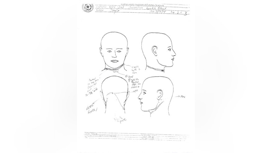 This image from the Sandra Bland autopsy report provided by the Waller County District Attorney's Office shows wounds to Bland's neck and head area. The complete autopsy on Bland has been released, Friday, July 24, 2015, a day after authorities said there were no signs on her body to suggest that her manner of death in jail was anything but suicide. (Waller County District Attorney's Office, via AP)