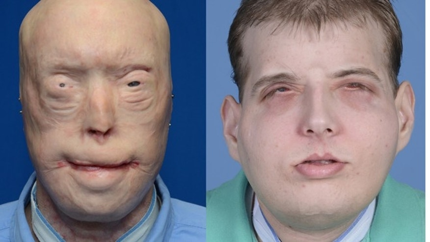 This combination of photos provided by the New York University Langone Medical Center shows Patrick Hardison before and after his facial transplant surgery in New York.