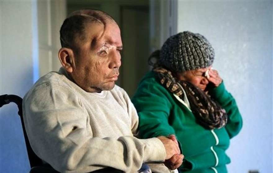Walter DeLeon, left, discusses the details of his shooting last June as his mother Elisa cries on Wednesday, Dec. 2, 2015, in Covina, Calif. DeLeon, who lost a quarter of his skull after being shot by a Los Angeles police officer, has filed notice that he plans to sue the city and police department. (AP Photo/Chris Carlson)