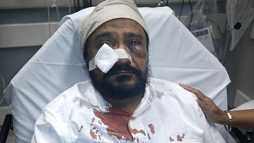 "This undated photo provided by Kanwar Singh, shows his father, Inderjit Mukker, after he was beaten in a September 2015 road rage incident with a Chicago-area teenager in which the teen called the 53-year-old Sikh taxi driver ""Bin Laden"" and repeatedly hit him in the face, breaking his cheekbone and leaving him bloodied and unconscious. Amid a new wave of anti-Islamic sentiment since the terror attacks in Paris and San Bernardino, Calif., across the U.S., Sikhs and Muslims are banding together to combat hateful rhetoric and dispel misconceptions about their respective religions. (Kanwar Singh via AP)"