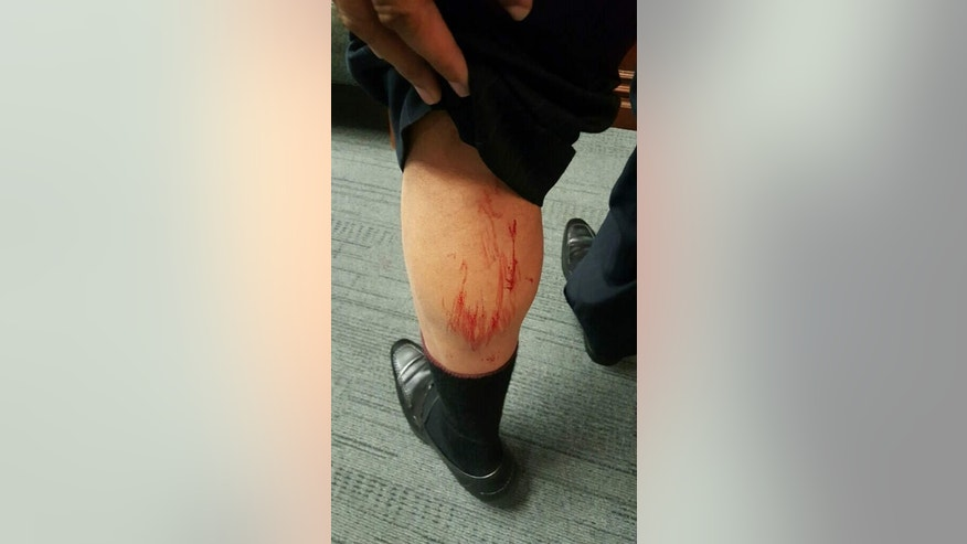 City Councilman Marcus Lundy's leg after the fight.