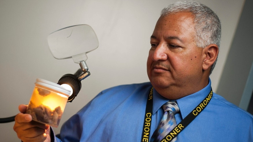This June 30, 2014 photo shows Dr. Mark Fajardo, Los Angeles County Medical Examiner-Coroner, posing with a specimen in a laboratory at his office in Los Angeles.