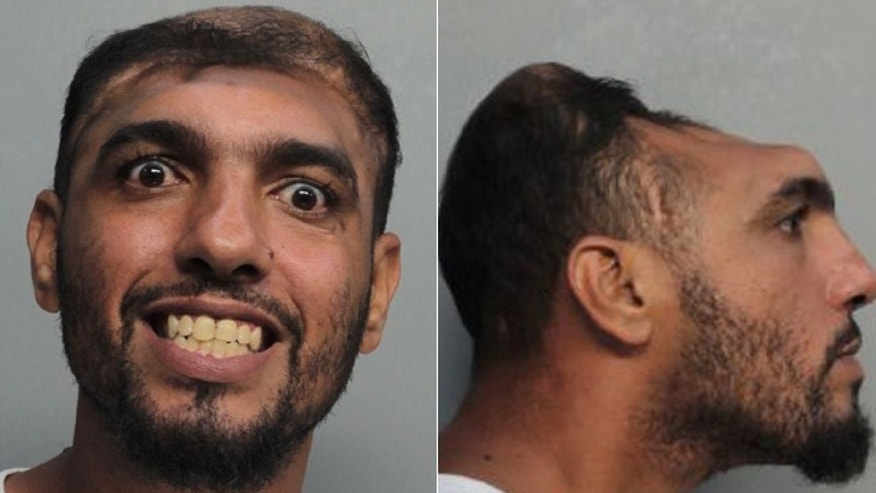 Half Headed Man arrest Florida