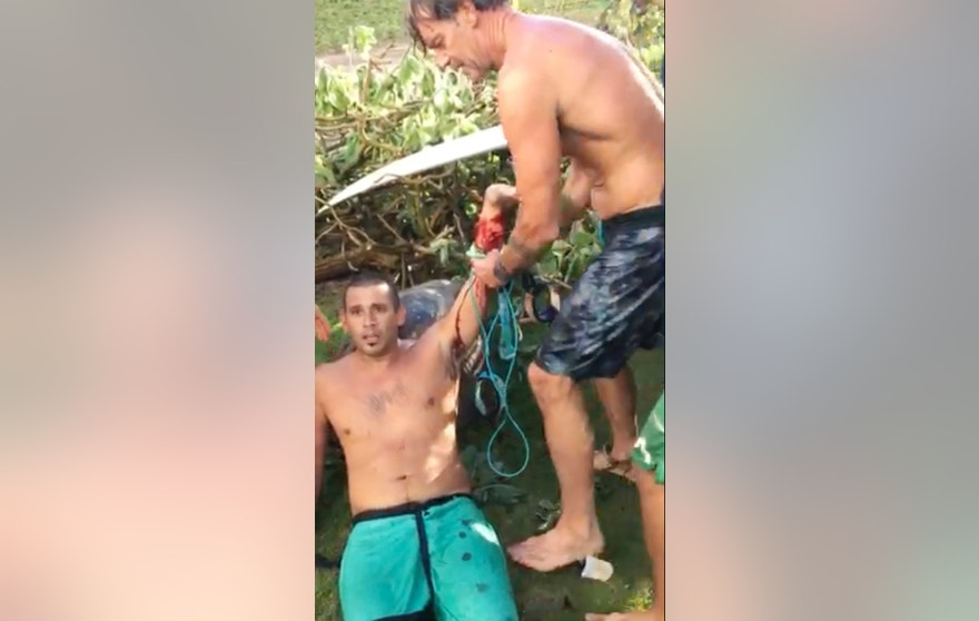 In this Friday, Oct. 21, 2016 image taken from video provided by Matt Meola, surfer Federico Jaime, left, is helped after being bitten by a shark near Paia, Hawaii, on the island of Maui. Jamie is recovering from the shark bite and is making plans to reschedule his honeymoon. Jaime was surfing Friday at a beach about two blocks from his Paia home when he felt a shark chomp down on his left arm, he recalled Monday, Oct. 24, from his room at Maui Memorial Medical Center. (Matt Meola via AP)