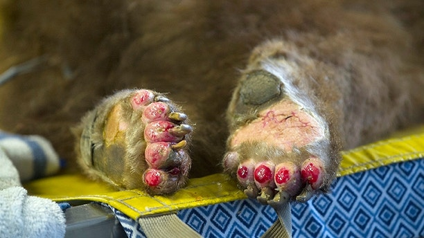 This Jan. 8, 2018, photo shows the badly burned paws of one of two bears being treated by Dr. Laura Peyton, Chief of Integrated medicine at the University of California, Davis Veterinary Medical Teaching Hospital at the California Department of Fish and Wildlife in Davis, Calif. Veterinarians successfully used alternative medical treatments such as acupuncture and wrapping wounds in fish skin on two bears and a mountain lion burned in the Southern California wildfires, vets at UC Davis said Wednesday, Jan. 24. (Karin Higgins/UC Davis via AP)