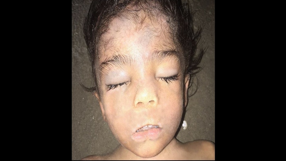 Little boy found on Galveston beach had been abused