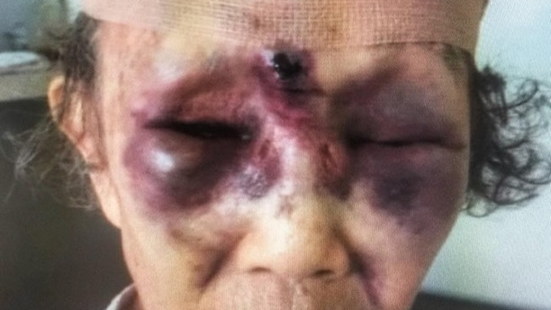 Suspect sought after elderly grandmother attacked in Koreatown during broad daylight