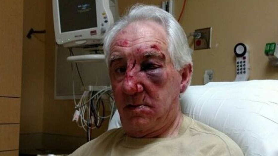 Deputies in Minnesota are investigating after an elderly man sustained multiple face fractures and several lacerations requiring many stitches following a road rage incident.