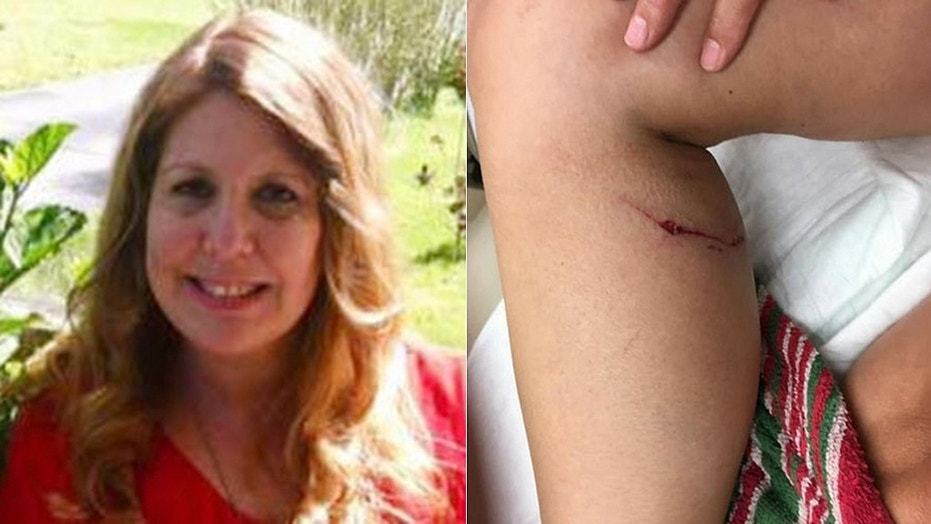 Tammy DuBois, 52, said a rabid fox attacked her leg outside her home in New Jersey, forcing her to strangle the animal.