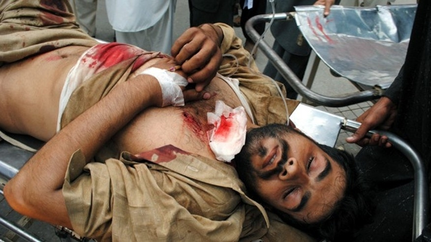 March 31: A person injured by a roadside bombing is rushed to a local hospital in Peshawar, Pakistan.