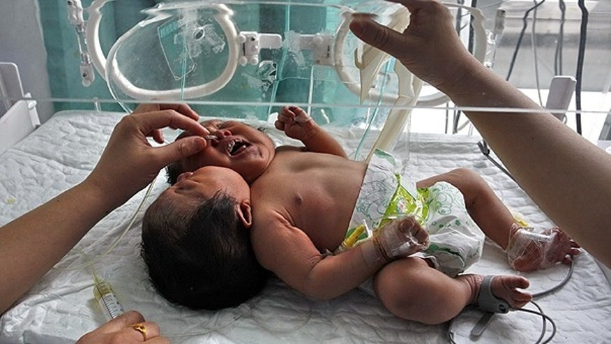 May 9: Medical workers attend to conjoined twin babies with a single body and two heads born on May 5 in a hospital in Suining city in southwestern China's Sichuan province.