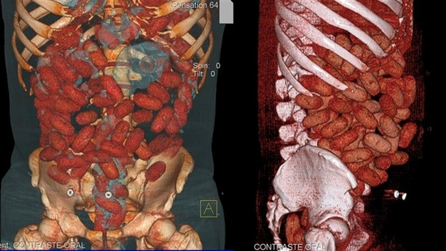 This handout medical image released by the Brazilian Federal Police shows cocaine-stuffed bags inside the gastrointestinal tract of a 20-year-old Irish national arrested by police at Congonhas airport in Sao Paulo, Brazil, on September 12.