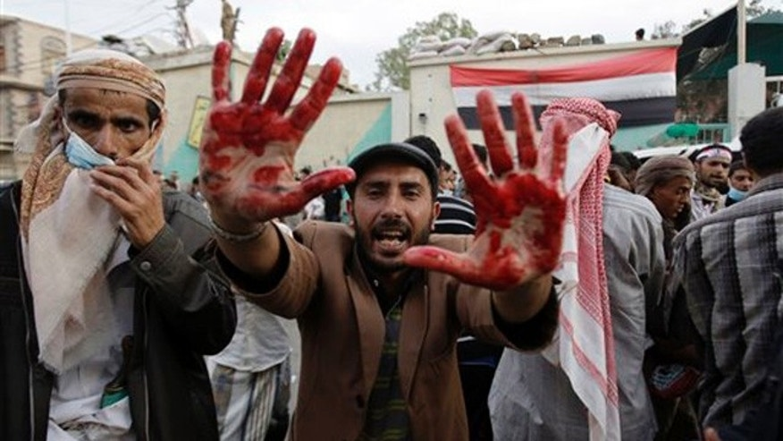 An anti-government protester holds out his blood-stained hands after clashes with security forces, in Sanaa, Yemen, Sunday, Sept. 18, 2011. Yemeni government forces opened fire with anti-aircraft guns and automatic weapons on tens of thousands of anti-government protesters in the capital pushing for ouster of longtime ruler Ali Abdullah Saleh, killing several people and wounding dozens.(AP Photo/Hani Mohammed)