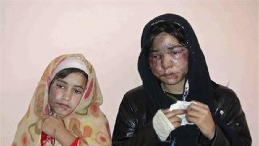 Nov. 30, 2011: Members of an Afghan family recieve treatment at a hospital aftering being attacked with acid by unknown gunmen.