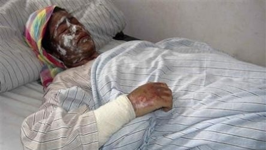 Nov. 30, 2011:  An Afghan woman recieves treatment at a hospital aftering being attacked with acid by unknown gunmen.