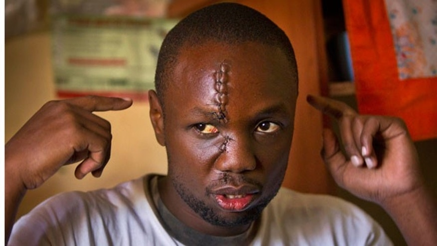 Jan. 31, 2012: Kenyan Anthony Omari, 24, describes the attack during which he suffered a machete slash to the face while defending one of Kenya's under-resourced orphanages from a half dozen machete-wielding thugs.