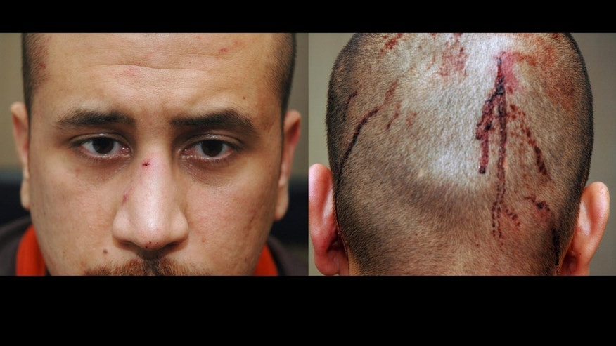 Feb 27: Photo released by the State Attorney's Office shows George Zimmerman, the neighborhood†watch volunteer who shot Trayvon Martin, with blood on the back of his head.