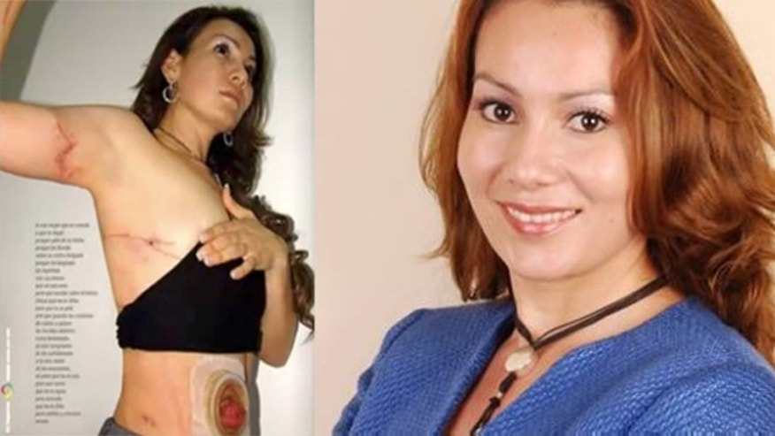Mexican Mayor María Santos Gorrostieta has become a symbol of the country's fight against its ruthless drug cartels. (LEFT) (YouTube/Grillonautas2)One of the photos published in a local  newspaper of the scars she had sustained in the two assassination attempts on her life before her eventual death last week by the cartels (RIGHT) (Credit: Facebook/Maria Santos Gorrostieta)