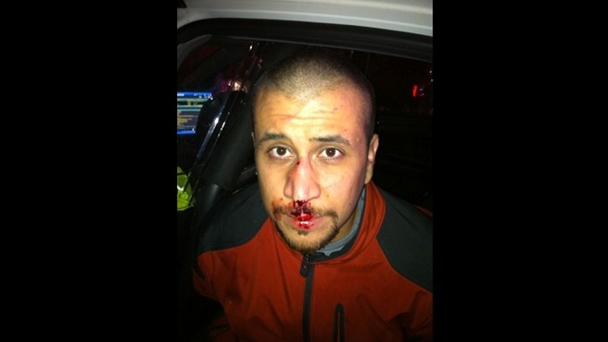 George Zimmerman. http://gzlegalcase.com/