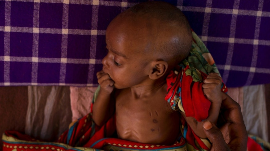 ADVANCE FOR SATURDAY DEC 22, 2012 In this Oct. 31, 2012 photo, a baby whose chest bears the scars of a traditional bloodletting treatment for sickly infants rests at a local malnutrition clinic, in Nokou in the Mao region of Chad. In this Sahel nation, childhood malnutrition and related mortality persist at alarming rates, despite the fact that most affected families live within a day's journey of internationally-funded nutrition clinics. One reason is that families, bound by local custom, choose instead to seek traditional treatments, treatments which can lead to the very infections that kill their undernourished children.(AP Photo/Rebecca Blackwell)