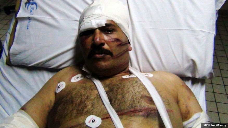 Amir Ayad lies in a hospital bed after he was allegedly beaten by Islamic hardliners who stormed a mosque in suburban Cairo. (MidEast Christian News)